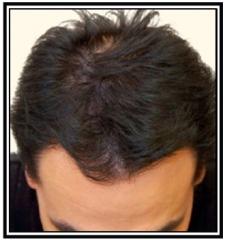 hair-restoration-1-after-frame