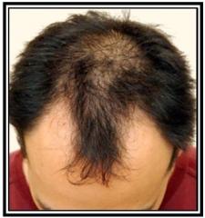 hair-restoration-1-before-frame