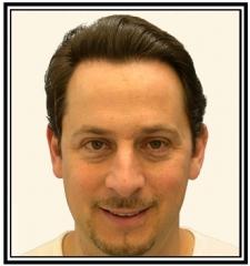 hair-transplant-1-after-frame