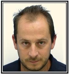 hair-transplant-1-before-frame