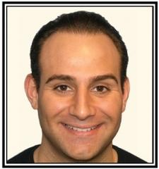 hair-transplant-2-after-frame