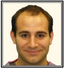 hair-transplant-2-before-frame