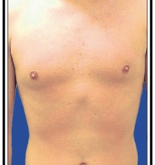 After - Laser Hair Removal