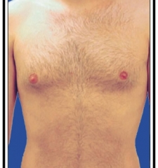 Before - Laser Hair Removal