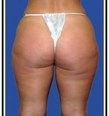 Before – Liposuction