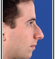Before – Rhinoplasty