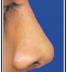 After – Rhinoplasty