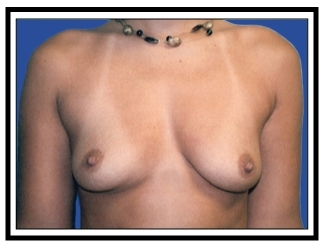 Before – Breast Augmentation