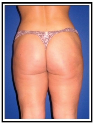 After – Liposuction
