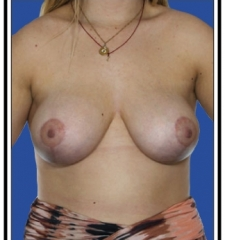After – Breast Augmentation