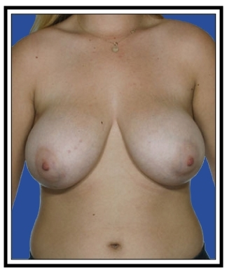 Before – Breast Reduction
