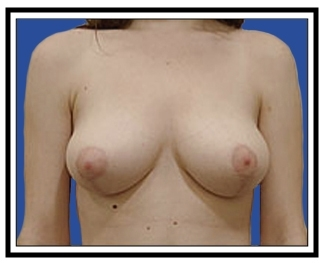 After – Breast Reduction