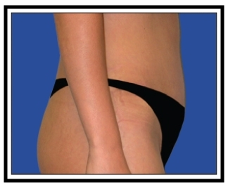 After – Tummy Tuck