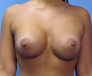 breast-augmentation-2-after