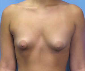 breast-augmentation-2-before