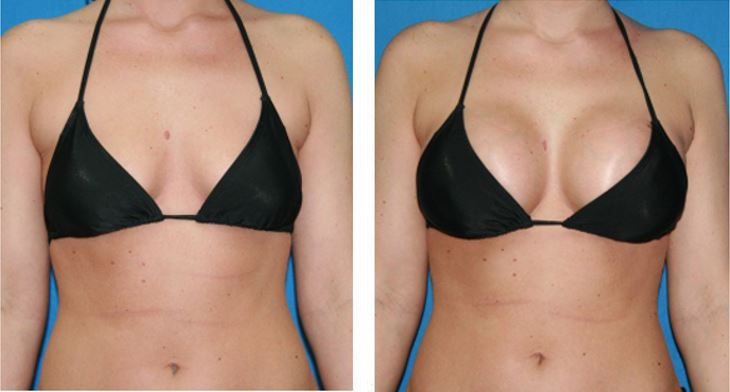 breast-enlargement-before-after