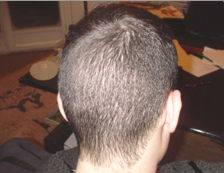 Hair Transplants NJ
