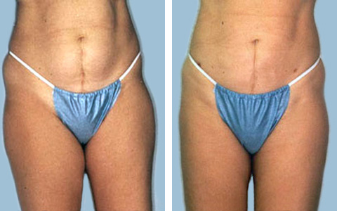 Tummy Liposuction new jersey