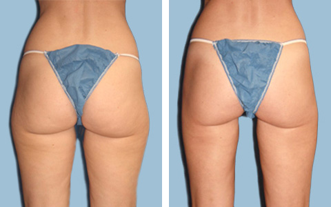 Inner Thigh Slim Lipo new jersey