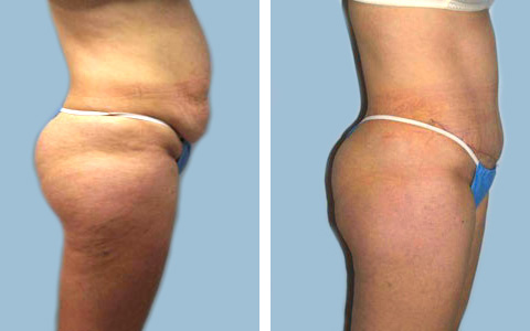 Thigh Lipo new jersey